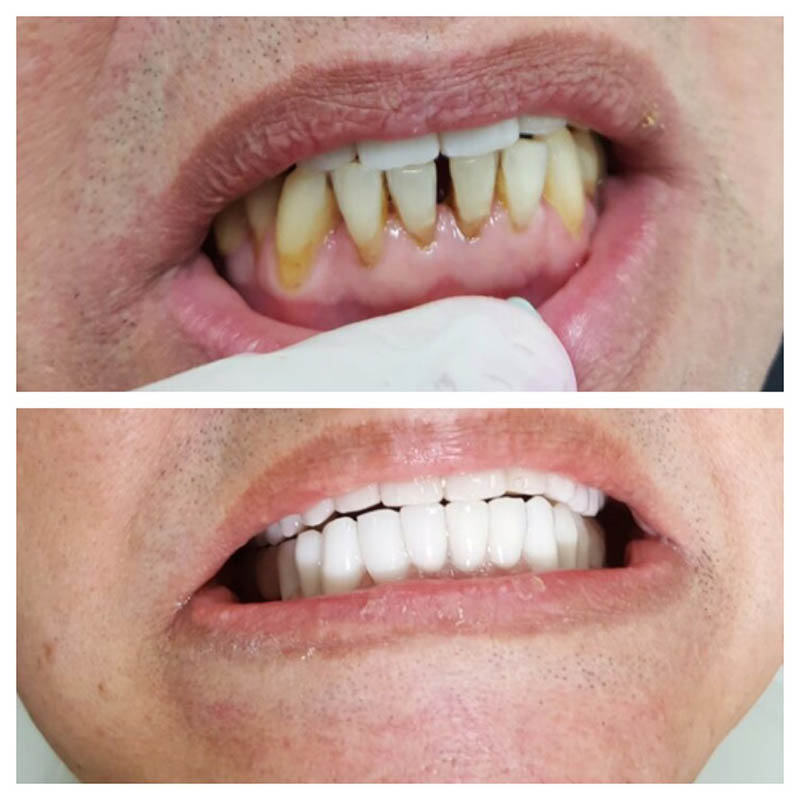 שיקום הפה באמצעות כתרי זירקוניה