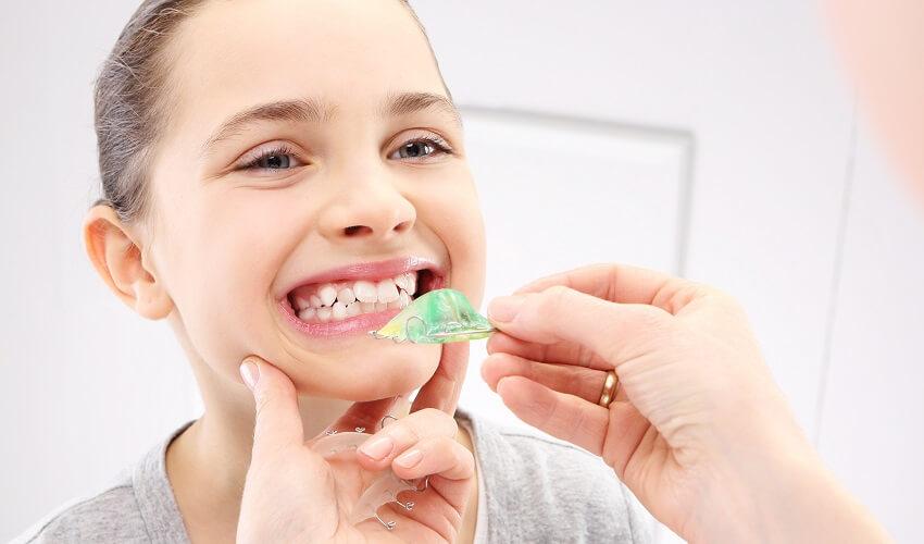 יישור שיניים 2