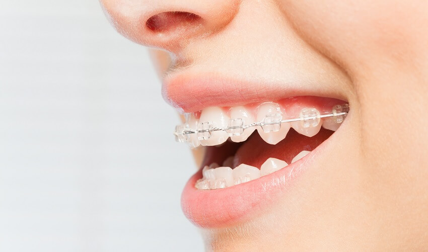 יישור_שיניים_1
